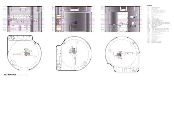 Medium tfd treatment pods